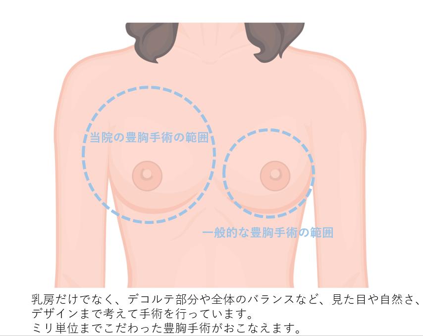 ヒアルロン酸 口コミ 胸 『刺すヒアルロン酸』の副作用?口コミから痛みや危険を検証する!