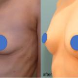 胸のハリが無くなり萎んでしまったバストを回復したケース。授乳後の豊胸は一番おすすめです
